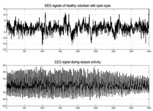 ЭЭГ парциальная (фокальная) эпилепсия