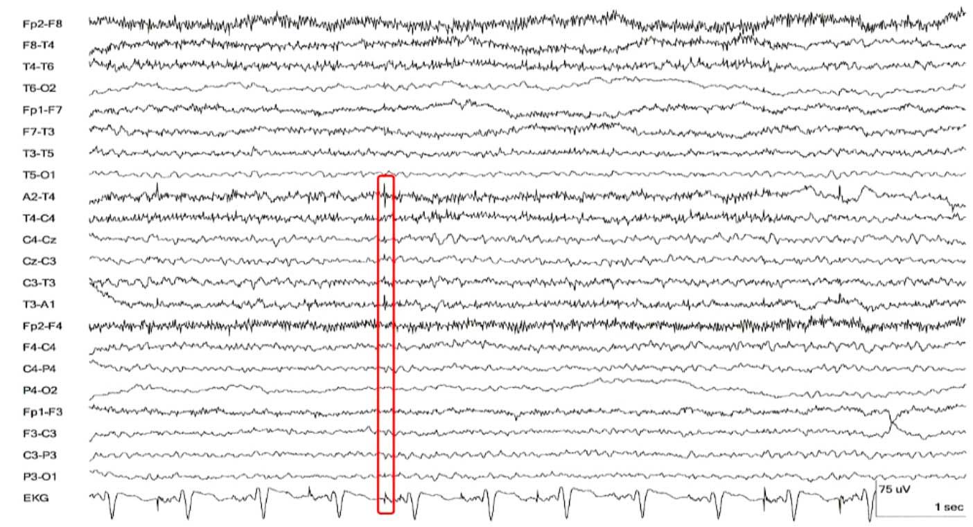 Электические кардио артефакты на ЭЭГ