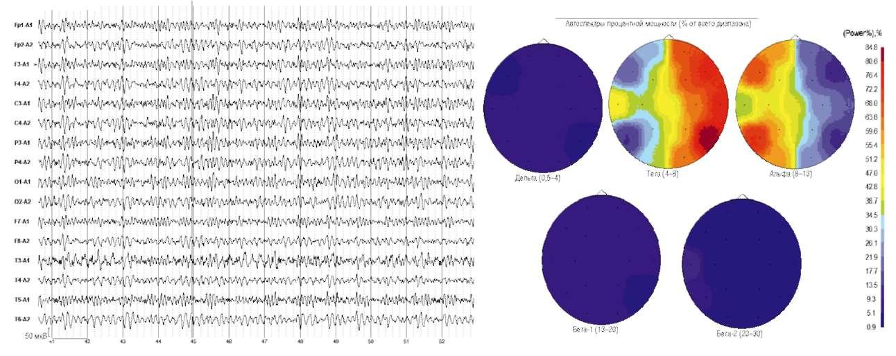 Головные боли. Электроэнцефалограмма и карты спектра мощности основных частотных диапазонов электроэнцефалограммы.