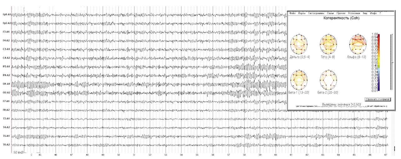 Электроэнцефалограмма и особенности организации внутри- и межполушарных отношений по показателям когерентности.