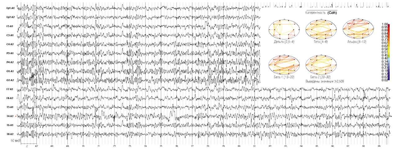 Киста эпифиза. Дезорганизация электроэнцефалограммы с наличием пароксизмальных разрядов острых волн, усиление δ-активности в височных отделах.