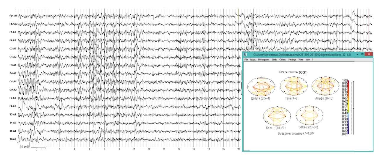 Мигрень. Дезорганизация электроэнцефалограммы с наличием пароксизмальных разрядов острых и медленных волн, наличие очага δ-активности в правой лобно-височной области.