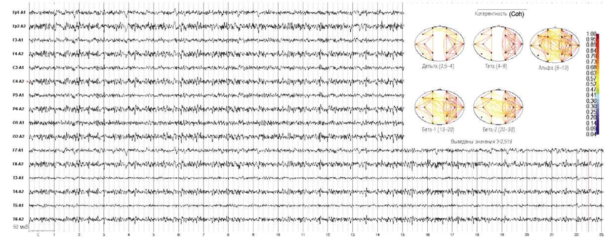 Болезнь Паркинсона. Дезорганизация электроэнцефалограммы с резко выраженной асимметрией, с усилением ß-активности по всей конвекситальной поверхности левого полушария.