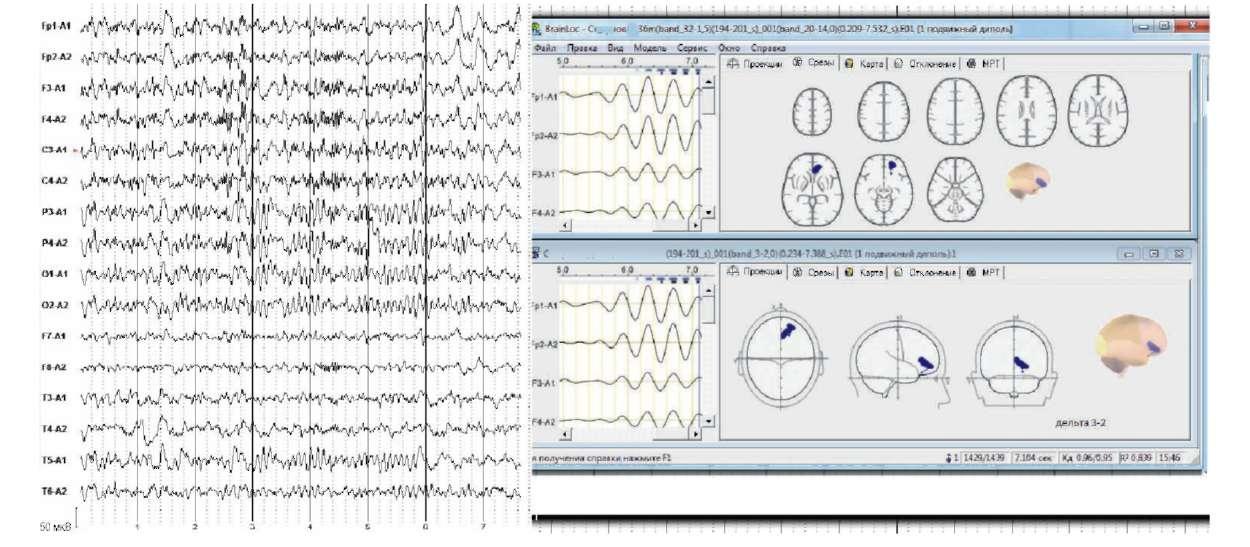 Неврологически здоров. Головные боли, утомляемость. Слева - электроэнцефалограмма, справа- локализация дипольных источников δ-активности в лобных отделах справа. На магнитно-резонансной томографии картина асимметрии А1-сегментов передних мозговых артерий и сужение просвета по обеим задним соединительным артериям. Снижение венозного оттока по правым поперечному и сигмовидному синусам и внутренней яремной вене