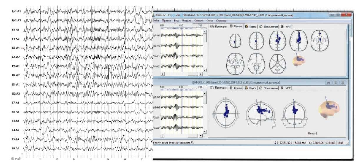 Жалобы на повышенную утомляемость, головные боли. Слева - электроэнцефалограмма. Справа - локализация дипольных источников ß-активности в области мозолистого тела и боковых желудочков.