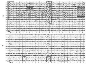 Электроэнцефалография пациента, фоновая запись. А - запись в референциальном монтаже, отмечаются синхронные билатеральные разряды групп θ- и δ-волн. Б - тот же отрезок электроэнцефалографии, запись в биполярном монтаже, выявляется локальная δ-активность в левой височной области