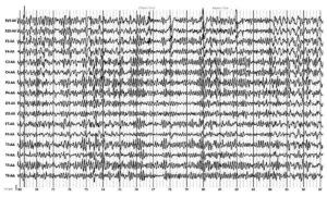 Электроэнцефалограмма пациента, фоновая запись. α-Ритм 9-10 колебаний/с, зональные различия нарушены. Отмечаются синхронные билатеральные разряды групп θ- и δ-волн, локальная δ-активность в левой височной области