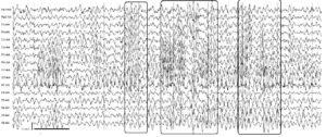 Электроэнцефалограмма пациента, запись на фоне гипервентиляции. Отмечается редукция α-ритма, усиление θ-активности, наличие постоянно возникающих высокоамплитудных генерализованных эпилептиформных разрядов