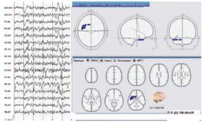 Локализация эквивалентных дипольных источников пароксизмальной δ-активности и электроэцефалограмма пациента (до лечения)