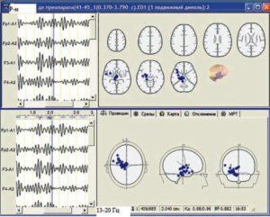 Электроэнцефалограмма и локализация эквивалентных дипольных источников пароксизмальной δ-активности пациента (до лечения)