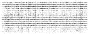 Повышенный уровень тревожности. На электроэнцефалограмме по всей конвекситальной поверхности отмечаются доминирование низкочастотного ß-ритма, пароксизмальные разряды высокочастотного ß-ритма