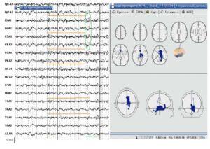 Электроэнцефалограмма и трехмерная локализация источников пароксизмальной δ-активности больного до лечения топираматом