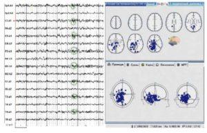 Электроэнцефалограмма и трехмерная локализация источников пароксизмальной ß-активности больного на фоне лечения топираматом