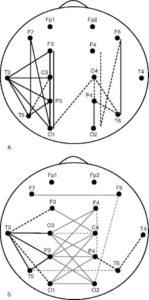 Диаграммы показателей когерентности по θ-активности у больных с исходно высокими (А) и исходно низкими (Б) значениями когерентности. Черными линиями отмечены пары отведений, для которых показатели когерентности у пациентов с эпилепсией выше, чем у здоровых испытуемых. Серыми линиями отмечены пары отведений, для которых показатели когерентности у пациентов с эпилепсией ниже, чем у здоровых испытуемых. Различия достоверны прир≤0,05. Пунктирные линии означают недостоверные значения