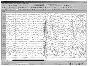 Генерализованный разряд «полиспайк-медленная волна» во второй стадии сна у пациента с ювенильной миоклонической эпилепсией