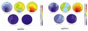 Спектры мощности электроэнцефалограммы больных паркинсонизмом, усредненные до лечения