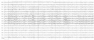 Электроэнцефалограммы испытуемой. Заключение: электроэнцефалография в пределах нормы