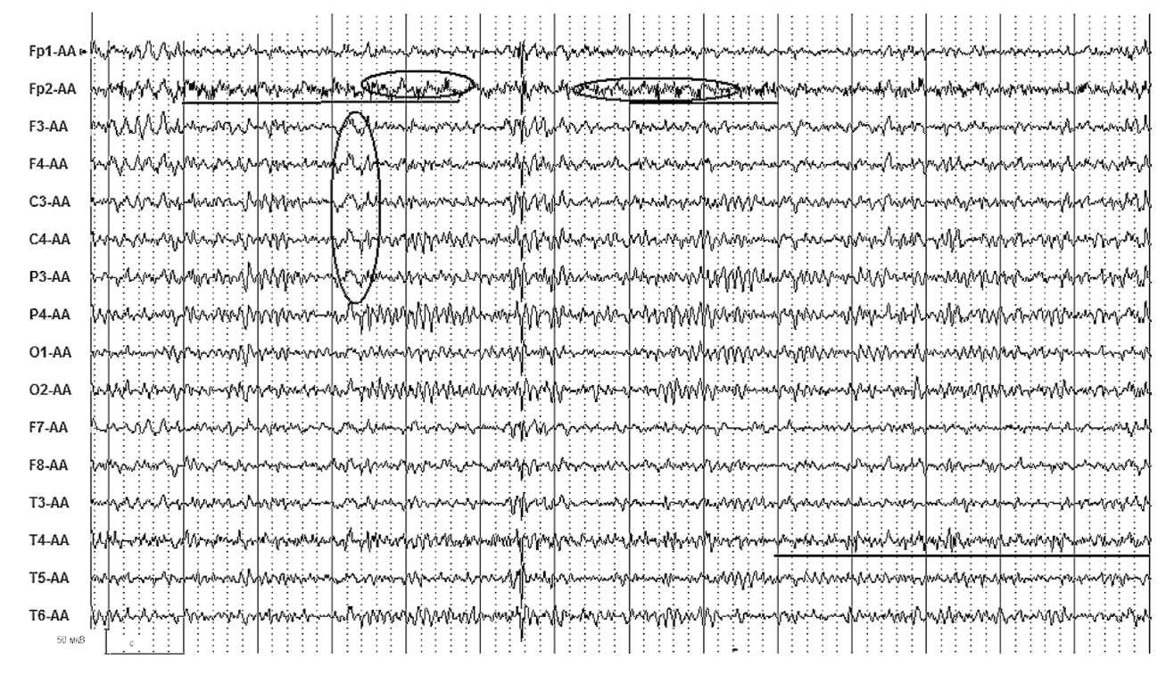 Электроэнцефалография пациента,37лет. В анамнезе развернутый однократный тонико-клонический приступ на фоне интоксикации парами лака при покраске пола