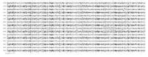 Болезнь Паркинсона. На электроэнцефалограмме по всей конвекситальной поверхности отмечается выраженная по амплитуде межполушарная асимметрия ß-активности с преобладанием в правом полушарии и пароксизмальные разряды высокочастотного ß-ритма