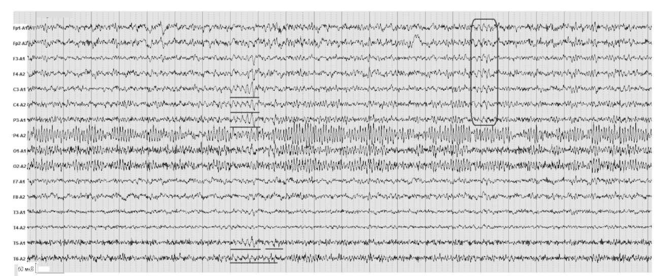 Синдром вегетативной дисфункции. На электроэнцефалограмме отмечаются единичные пароксизмальные разряды низкочастотного θ-ритма в лобно-центральных и височных отделах