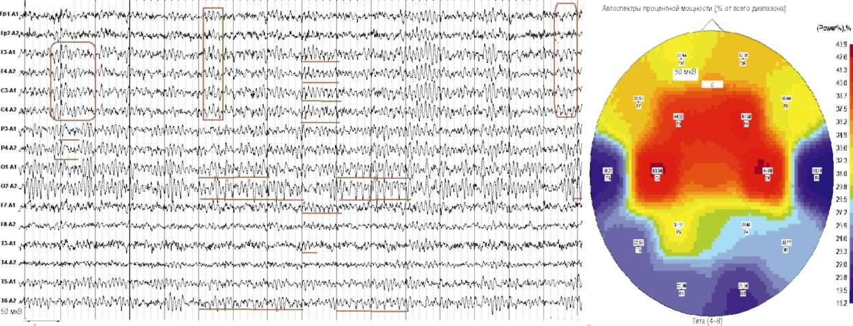 Неврологически здорова. Анамнез отягощен нарушениями альцгеймеровского типа. На электроэнцефалограмме отмечаются отчетливо выраженные пароксизмальные разряды высокочастотного θ-ритма (индекс θ в лобно-центральных отделах >40%). В затылочно-височных отделах регистрируются группы низкочастотного θ-ритма с преобладанием в правом полушарии
