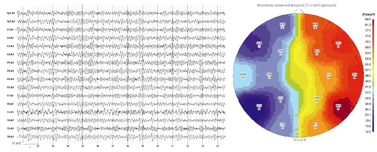 Повышенное эмоционально-вегетативное состояние, приступы агрессии. На электроэнцефалограмме отмечается выраженная по амплитуде межполушарная асимметрия θ-активности с преобладанием в правом полушарии с фокусом в задневисочном отделе (Т6)