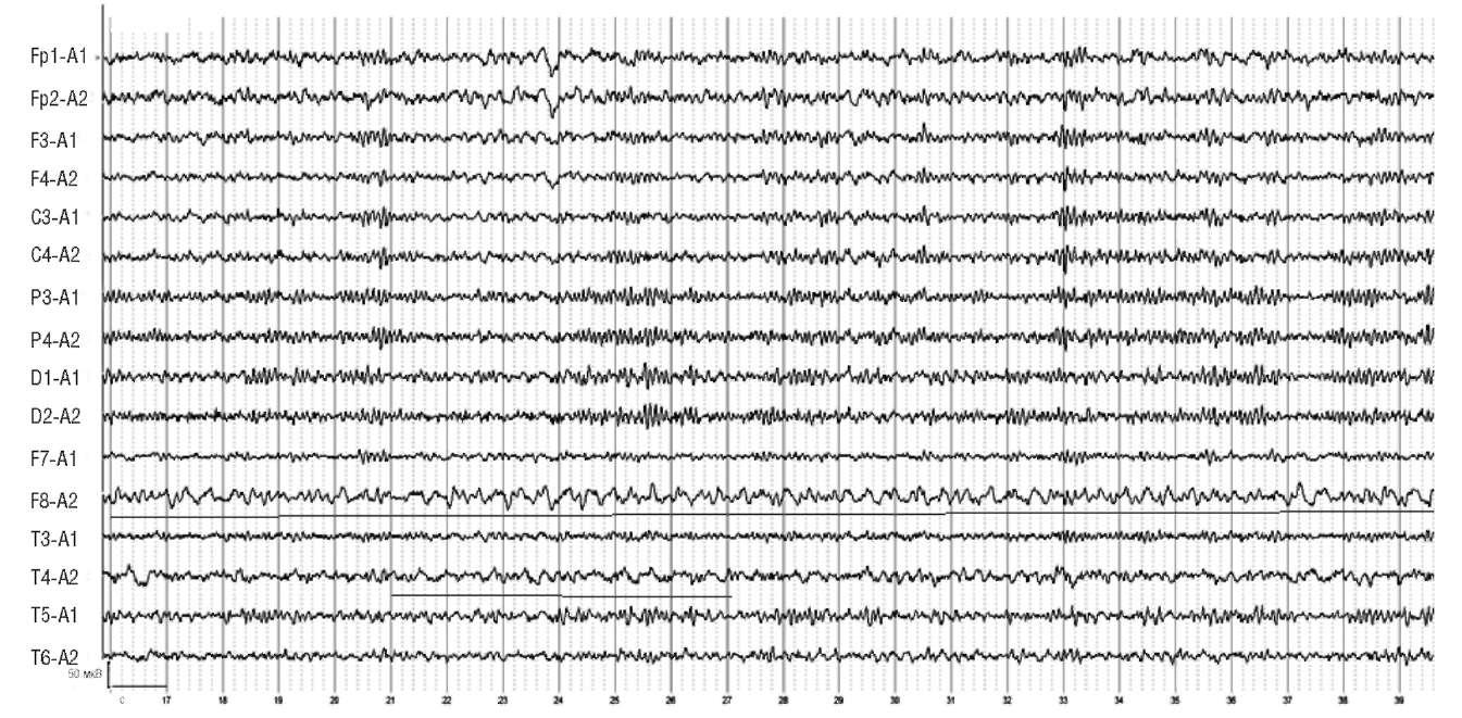 По данным магнитно-резонансной томографии: немногочисленные очаги глиоза в белом веществе височной области больших полушарий и в левом полушарии мозжечка. На электроэнцефалограммме отмечается выраженная δ-активность с преобладанием в правом полушарии с фокусом в височных отделах (F8, Т4)