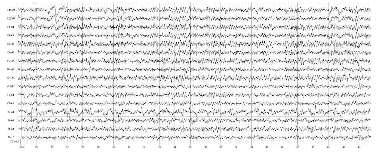 Вторично-генерализованные судорожные приступы. Острые нарушения мозгового кровообращения левой среднемозговой артерии. На электроэнцефалограмме регистрируется δ-активность, локализованная в левой височной области (ТЗ)