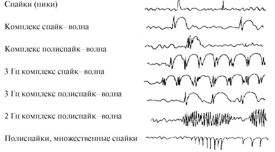 Основные виды эпилептиформной активности (Зенков Л.Р., 2002)