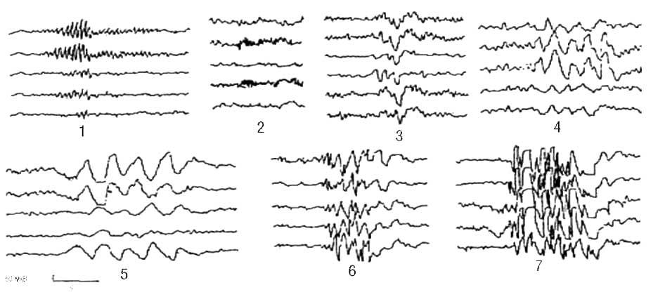 Вспышки и разряды: 1 - вспышка заостренных α-волн высокой амплитуды; 2 - заостренные ß-волны высокой амплитуды; 3 - вспышка θ-волн; 4 - вспышка полиморфных колебаний; 5 - вспышка δ-волн; 6 - разряд острых волн; 7 - разряд спайков острых волн и комплексов спайк-волна (Зенков Л.Р., 2002)