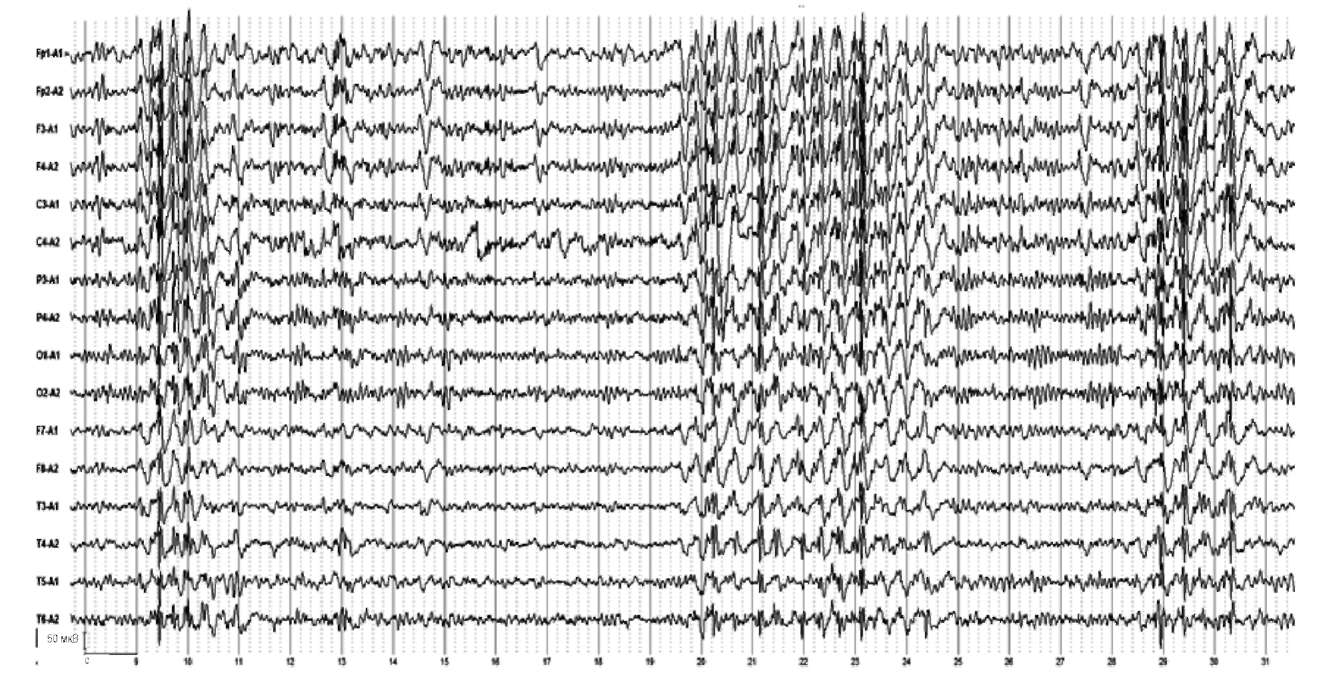 Генерализованные тонико-клонические судороги. На электроэнцефалограмме регистрируются множественные билатеральные разряды спайков и комплексов спайк-волна