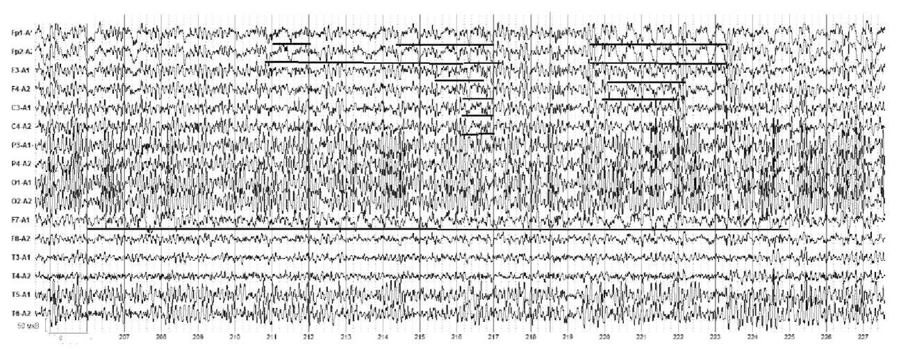 Речевые автоматизмы. На электроэнцефалограмме отмечаются очаг постоянной δ-активности в височных отделах левого полушария (F7) и билатеральные комплексы острая-медленная волна в лобных отделах