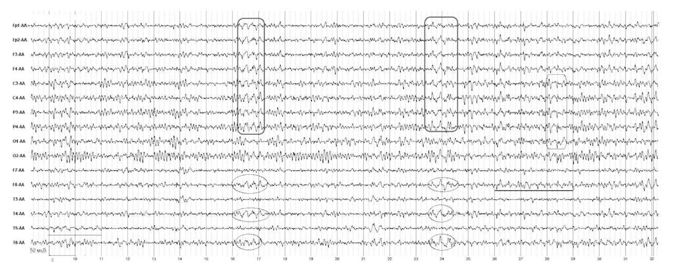Парциальные приступы. На электроэнцефалограмме отмечается наличие пароксизмальной активности, представленной в виде групп δ-волн в височных отделах правого полушария и генерализованных билатеральных комплексов острая-медленная волна. По данным магнитно-резонансной томографии - множественные кисты в височно-теменных отделах