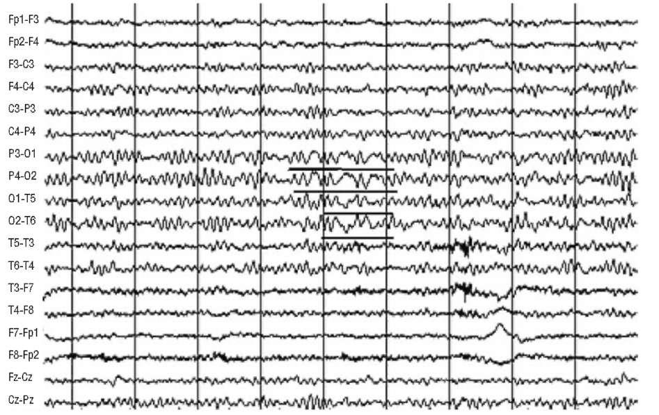 Роландическая эпилепсия. Простые парциальные приступы с моторными феноменами в ночное время. Стадия ремиссии. На электроэнцефалограмме в затылочно-теменных отведениях (при биполярной записи) регистрируются комплексы острая-медленная волна (δ)