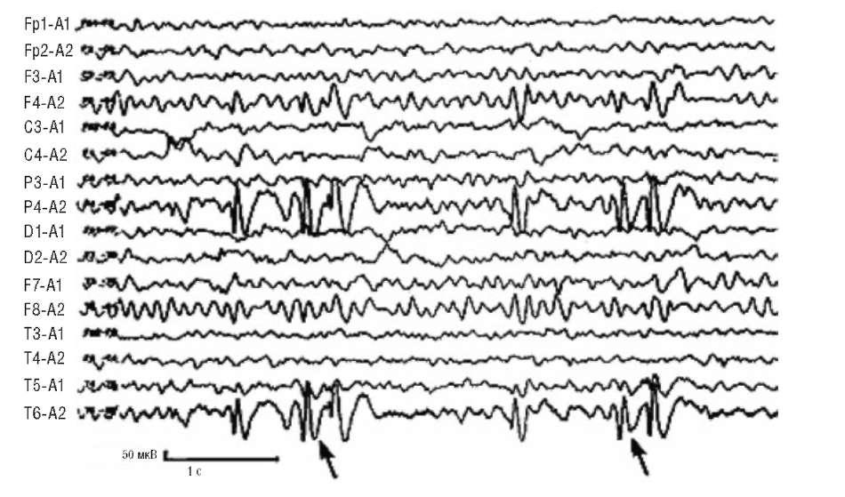 Фокус эпилептиформной активности в правой затылочной области