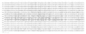 Электроэнцефалограмма в пределах возрастной нормы. α-Ритм модулирован, зональные различия отчетливо выражены, в передних отделах регистрируются фрагментарные Θ- и δ-волны