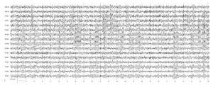 Дисциркуляторная энцефалопатия. На электроэнцефалограмме отмечается гиперсинхронный слабомодулированный α-ритм, усиленный по всем отведениям, зональные различия снижены