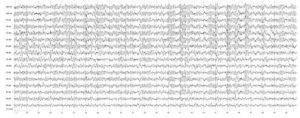 Симптоматическая парциальная эпилепсия. На электроэнцефалограмме отмечается гиперсинхронный слабомодулированный α-ритм, усиленный в лобно-центрально-теменных отделах головного мозга, зональные различия снижены, периодически возникают синхронные билатеральные разряды комплексов а-и δ-волн
