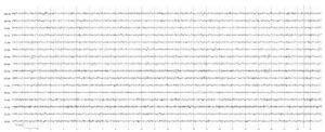 Неврологических жалоб нет. На электроэнцефалограмме отмечается низкоамплитудная биоэлектрическая активность с наличием нерегулярных диффузных Θ- и δ-волн. α-Активность фрагментарна, низкоамплитудна. Вариант нормы