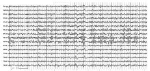 5 лет назад была тяжелая черепно-мозговая травма с потерей сознания, потерей трудоспособности: нарушение координации движения, замедленность речи. Электроэнцефалограмма зарегистрирована на фоне восстановления трудоспособности, отмечаются дезорганизованность α-ритма по форме и частоте, наличие Θ-, δ-ритма и острых волн