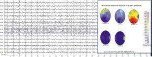Жалобы на утомляемость. На электроэнцефалограмме отмечаются дезорганизованность α-ритма, наличие острых волн, Θ- и δ-активности в передних отделах и фокус ß-активности в правой височной области