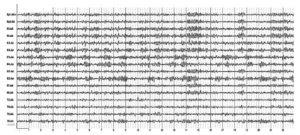 Пролактинемия. На электроэнцефалограмме отмечаются дезорганизованность α-ритма, наличие острых волн, групп θ-активности