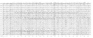 Парциальная эпилепсия. На электроэнцефалограмме отмечаются дезорганизованная биоэлектрическая активность, наличие локальной δ-активности в центральной области левого полушария и височной области правого полушария и очаг ß-активности в теменных отделах правого полушария