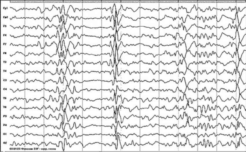 Синдром Отахара. ЭЭГ-паттерн - «вспышка-подавление» (Родриге В.Л., 2004)