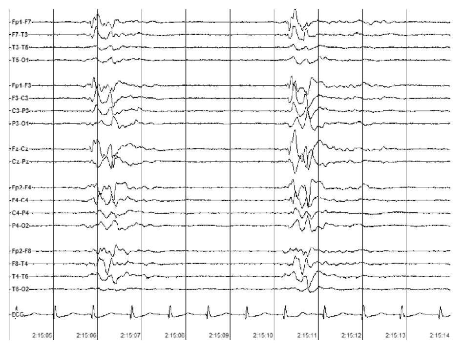 Аноксическая энцефалопатия после остановки сердца. Паттерн «вспышка-подавление»