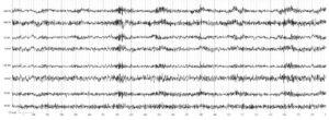 Электроэнцефалограмма больного. Глиобластома. В электрограммах всех исследуемых структур регистрируются веретена высокочастотной ß-активности с амплитудой, несколько превышающей 50 мкВ