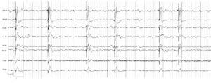 Электроэнцефалограмма больной. В электрограммах всех исследуемых структур регистрируются комплексы Радермекера с амплитудой до 300 мкВ