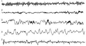 Электроэнцефалограмма здорового человека в различные стадии сна: 1 - бодрствование; 2 - 1-я стадия сна; 3 - 2-я стадия сна (сонные веретена); 4 - 3-4 стадии сна (медленноволновый сон); 5 - быстрый сон