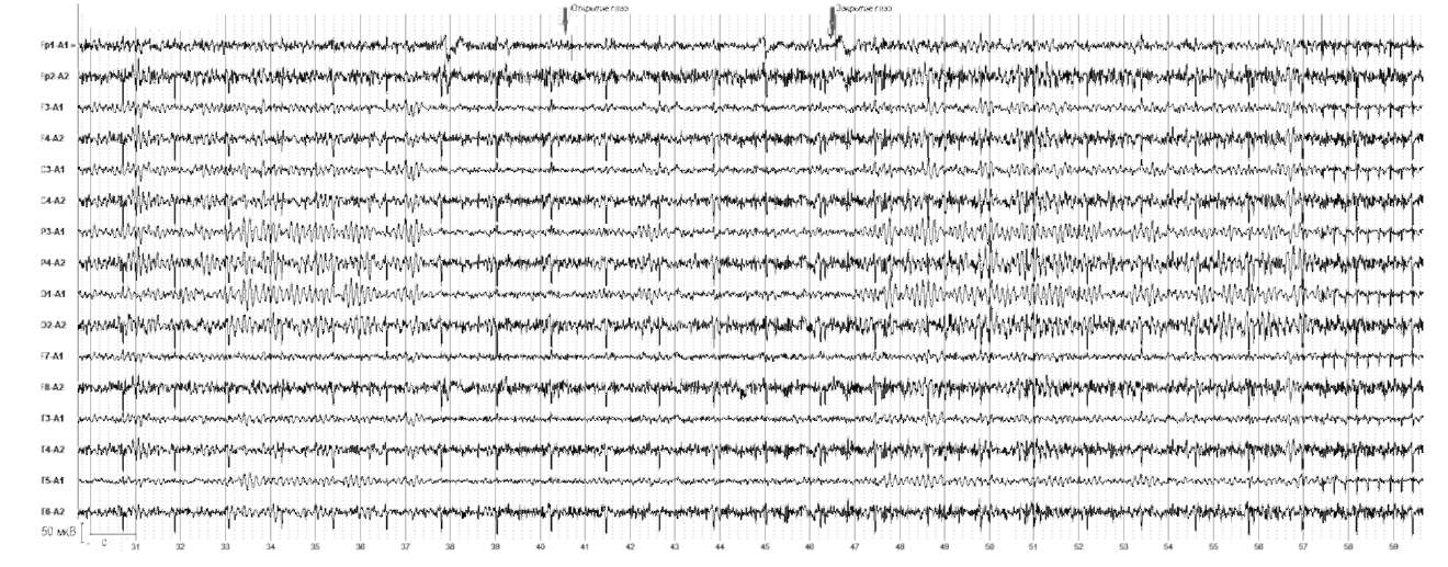 Болезнь Паркинсона. При открывании глаз отмечается выраженная депрессия α-ритма, но сохраняется отчетливо выраженная ß-активность во всех отведениях правого полушария