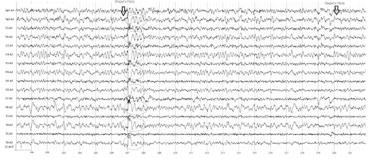 Киста в правой лобно-теменно-височной области, симптоматическая парциальная эпилепсия. При открывании глаз отмечается генерализованный разряд групп высокоамплитудных θ-волн с акцентом в правом полушарии